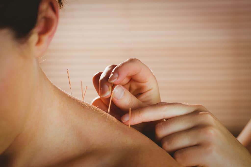 acupuncture for cancer
