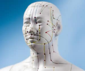 Acupuncture for Migraines & Headaches